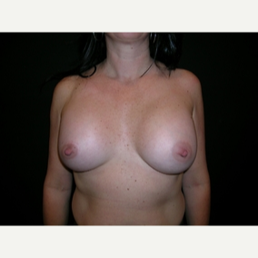44 year old woman treated with Breast Augmentation after 3840058