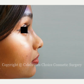 18-24 year old woman treated with Rhinoplasty after 3768589