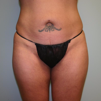 46 year old woman treated with Liposuction after 3442247
