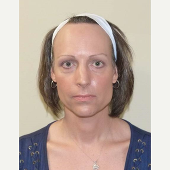 45-54 year old woman treated with Facial Feminization Surgery before 3135671
