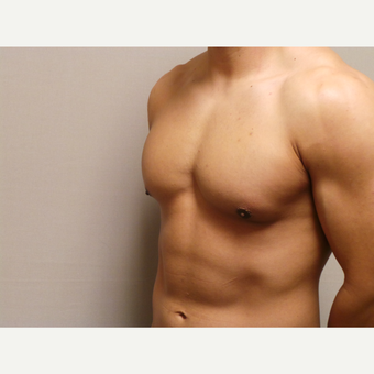 25-34 year old man treated with Male Breast Reduction after 3454673
