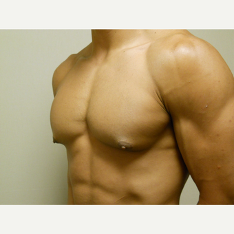 25-34 year old man treated with Male Breast Reduction before 3454673