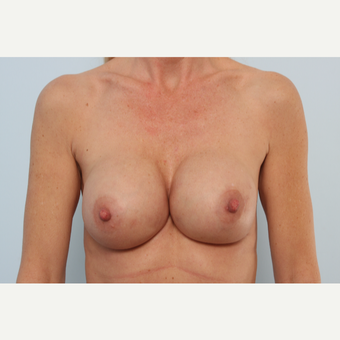Breast Implant Exchange before 2966333