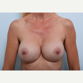 Breast Implant Exchange after 2966333
