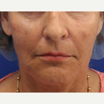 64 year old woman treated with Bellafill for mid face volume loss after 2120534