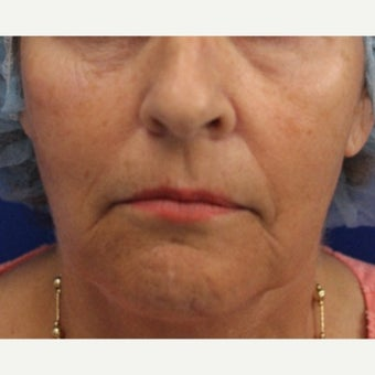 64 year old woman treated with Bellafill for mid face volume loss before 2120534