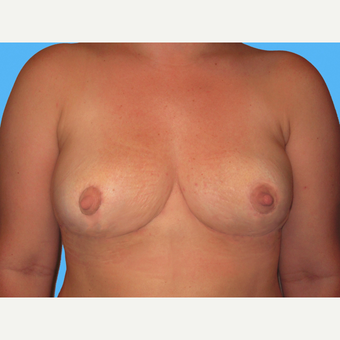 Breast Implant Removal after 3809817