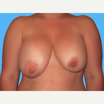 Breast Implant Removal before 3809817