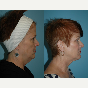55-64 year old woman treated with Kybella before 3781864