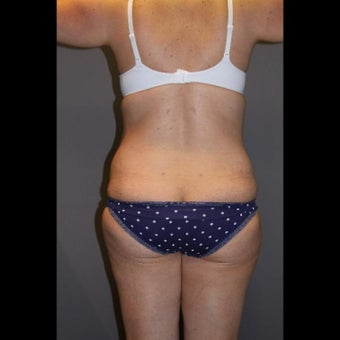 25-34 year old woman treated for Liposuction
