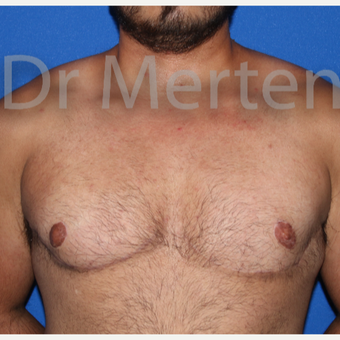 25-34 year old man treated with FTM Chest Masculinization Surgery after 3828968