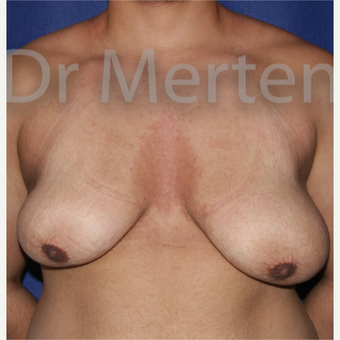 25-34 year old man treated with FTM Chest Masculinization Surgery before 3828968