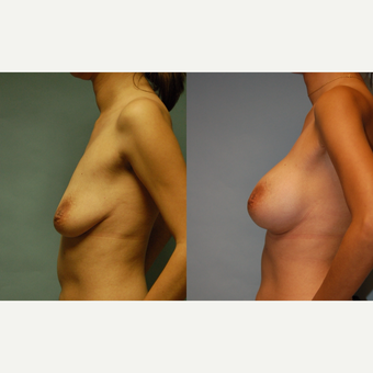 "37 year old woman, 5'4"", 108 lbs. Breast Augmentation  34 AA to C after 3420140"