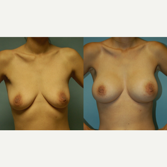 "37 year old woman, 5'4"", 108 lbs. Breast Augmentation  34 AA to C before 3420140"