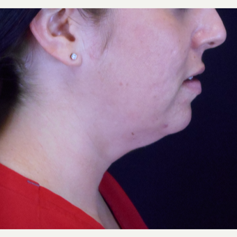 25-34 year old woman treated with Kybella before 3283608