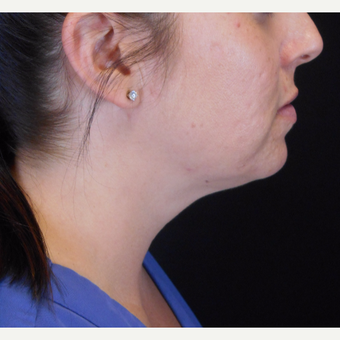 25-34 year old woman treated with Kybella after 3283608
