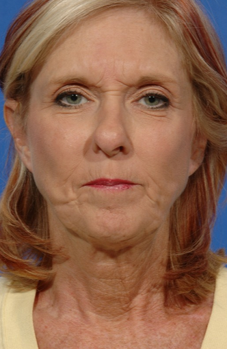 Facelift Revision of a 57 yr old woman before 2052785