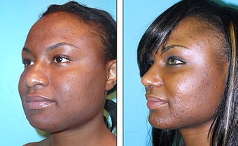 Nose Job- Rhinoplasty before 1116918