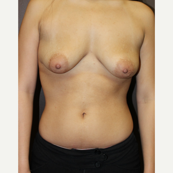 18-24 year old woman treated with Breast Lift with Implants before 3305499