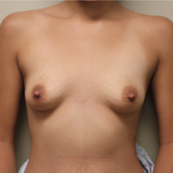 22 year old woman treated with Breast Augmentation before 3482941