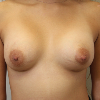 22 year old woman treated with Breast Augmentation after 3482941