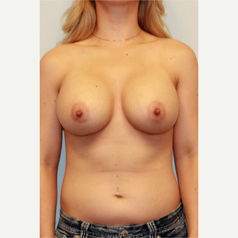 18-24 year old woman treated with Breast Augmentation after 3027357