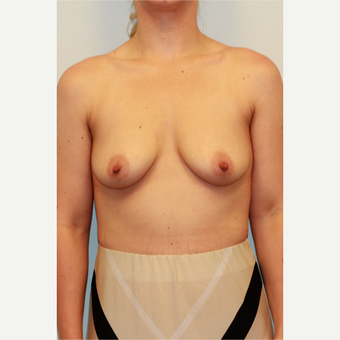 18-24 year old woman treated with Breast Augmentation before 3027357