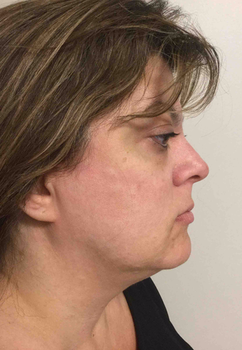 45-54 year old woman treated with CoolSculpting