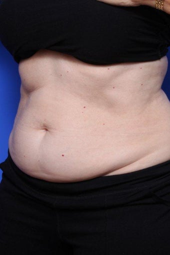 Coolsculpting Before before 903314