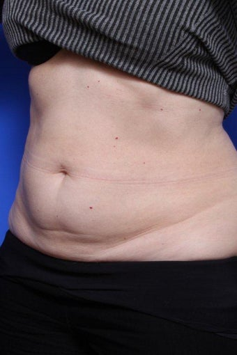 Coolsculpting Before after 903314