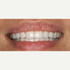 35-44 year old woman treated with Lip Lowering after 3027657