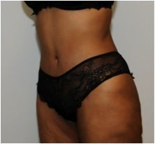Abdominoplasty after 123630