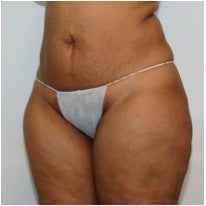 Abdominoplasty before 123630