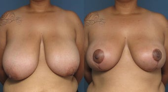 Breast Reduction before 1029137