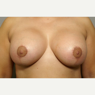 39 year old woman treated with Breast Lift with Implants after 3094837