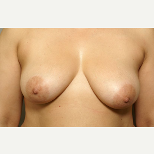 39 year old woman treated with Breast Lift with Implants before 3094837