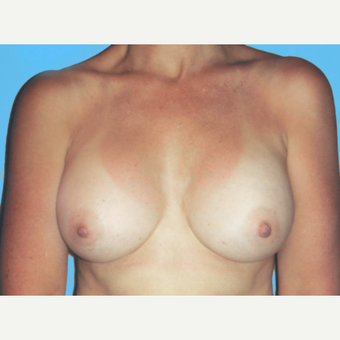 Breast Augmentation after 3732688