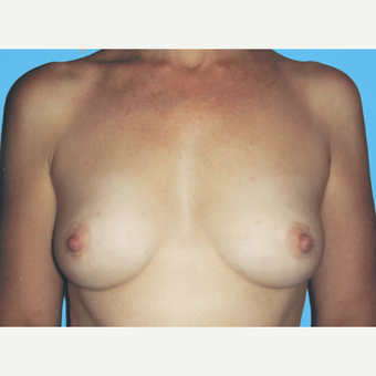 Breast Augmentation before 3732688