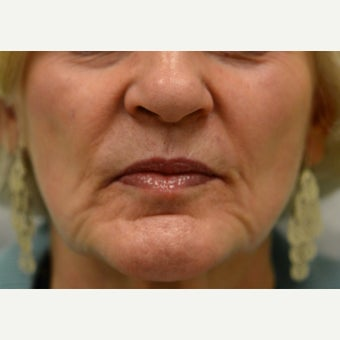 55-64 year old woman:  Cheek and Peri-oral augmentation before 1715043