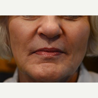 55-64 year old woman:  Cheek and Peri-oral augmentation after 1715043