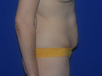 Abdominoplasty / Tummy Tuck Before and After before 1524064