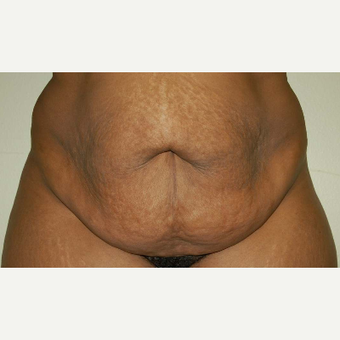 Tummy Tuck before 2121953