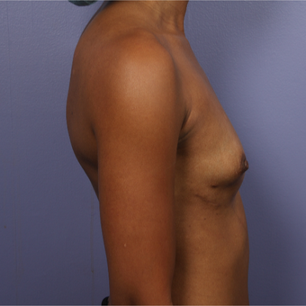 25-34 year old woman treated with Breast Augmentation before 3226376