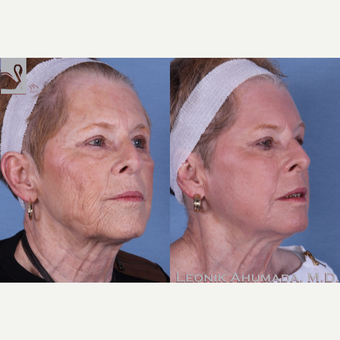 65-74 year old woman treated with Full Face Laser Resurfacing after 3093412