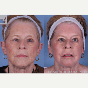 65-74 year old woman treated with Full Face Laser Resurfacing before 3093412