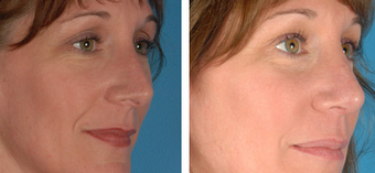 Revision Rhinoplasty before 1208288