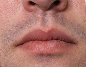 26 Year Old Treated For Large and Chapped Lips before 1108190