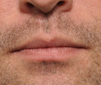 26 Year Old Treated For Large and Chapped Lips after 1108190