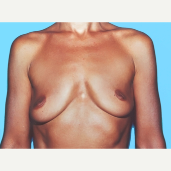 Breast Augmentation before 3732520