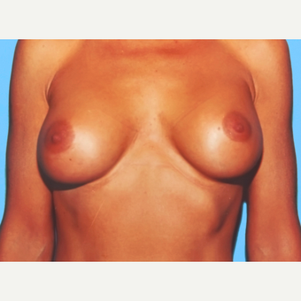 Breast Augmentation after 3732520